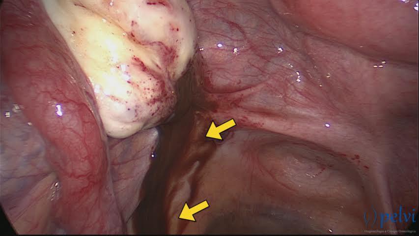 líquido achocolatado típico contido no endometrioma ovariano.