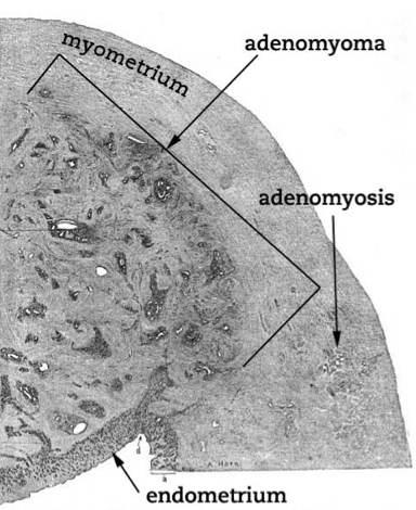 Adenomiose difusa na parede posterior do útero.